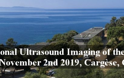 fUSbrain2019: International workshop on Functional Ultrasound Imaging of the Brain