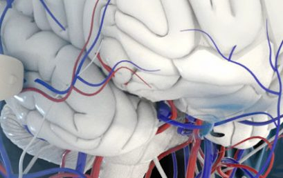 Transcranial super-localization imaging of the adult brain in the Best Of EMIM Talks 2020