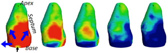 3D ultrafast echocardiography: full characterization of cardiac functions within a heartbeat